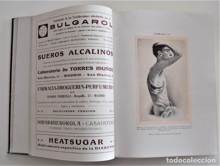 Libros antiguos: LOS PROGRESOS DE LA CLÍNICA DOS TOMOS AÑO COMPLETO DE 1914 - Foto 7 - 202394430