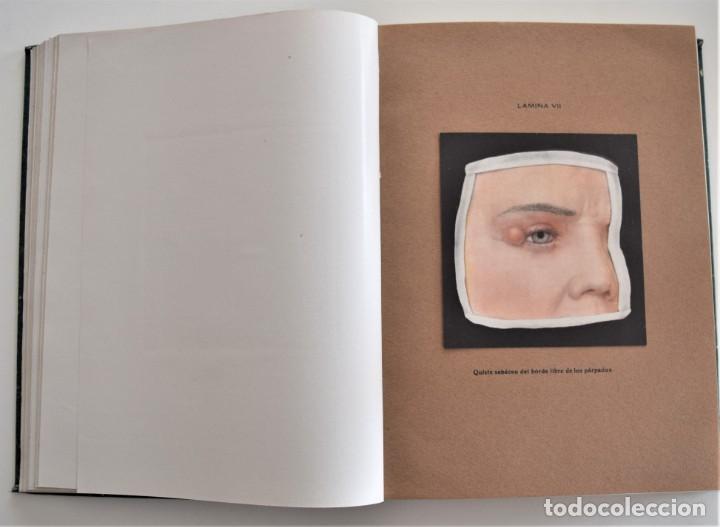 Libros antiguos: LOS PROGRESOS DE LA CLÍNICA DOS TOMOS AÑO COMPLETO DE 1914 - Foto 8 - 202394430
