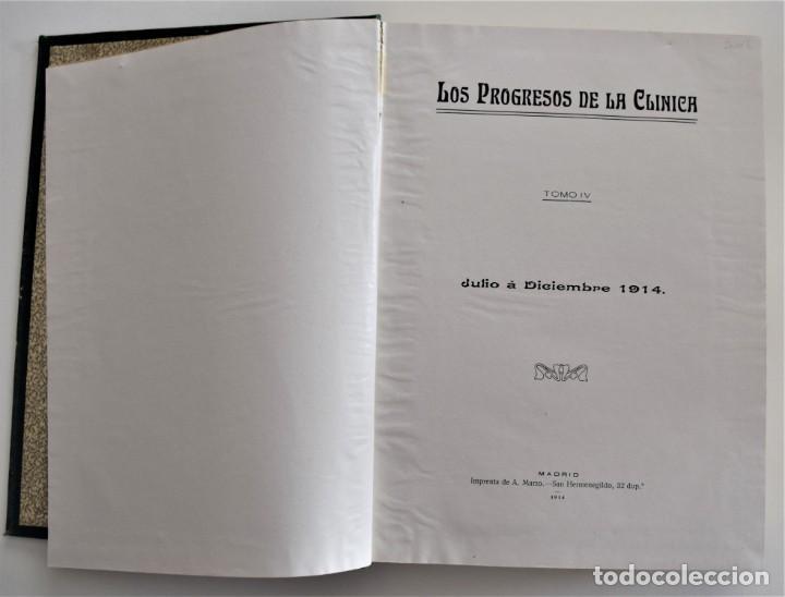 Libros antiguos: LOS PROGRESOS DE LA CLÍNICA DOS TOMOS AÑO COMPLETO DE 1914 - Foto 11 - 202394430