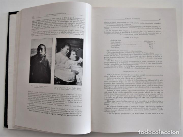 Libros antiguos: LOS PROGRESOS DE LA CLÍNICA DOS TOMOS AÑO COMPLETO DE 1914 - Foto 12 - 202394430