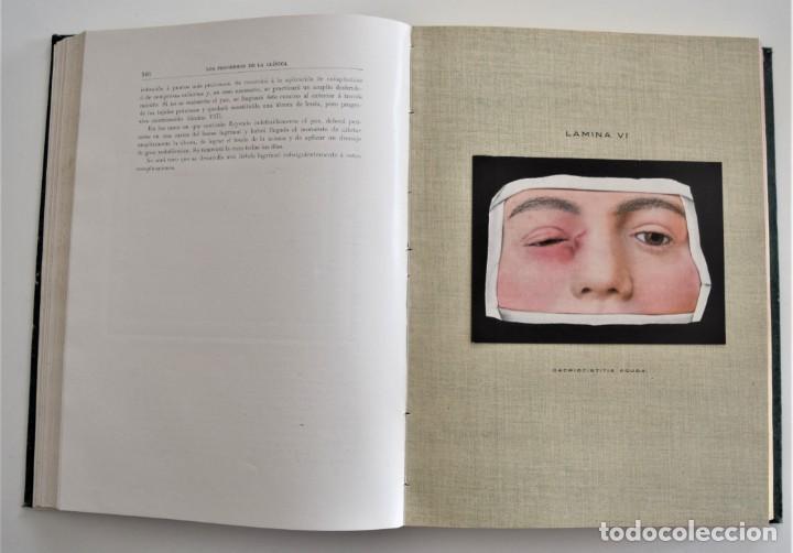 Libros antiguos: LOS PROGRESOS DE LA CLÍNICA DOS TOMOS AÑO COMPLETO DE 1914 - Foto 13 - 202394430