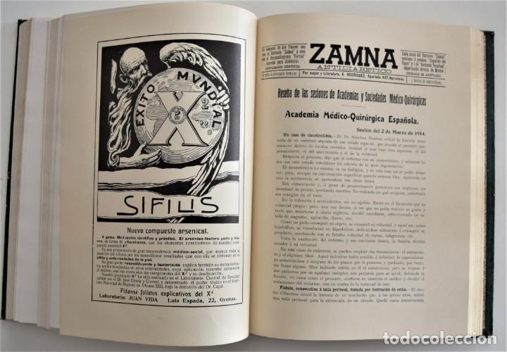 Libros antiguos: LOS PROGRESOS DE LA CLÍNICA DOS TOMOS AÑO COMPLETO DE 1914 - Foto 14 - 202394430