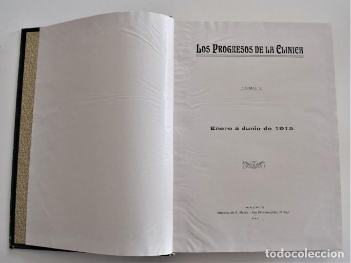 Libros antiguos: LOS PROGRESOS DE LA CLÍNICA DOS TOMOS AÑO COMPLETO DE 1915 - Foto 4 - 202394771