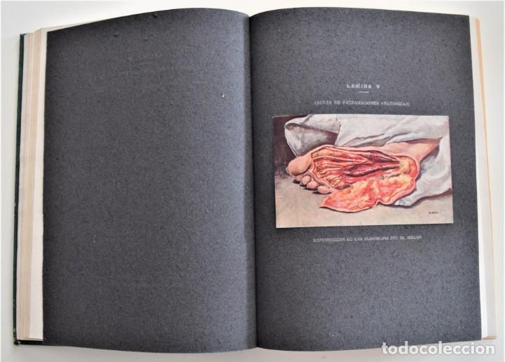 Libros antiguos: LOS PROGRESOS DE LA CLÍNICA DOS TOMOS AÑO COMPLETO DE 1915 - Foto 6 - 202394771