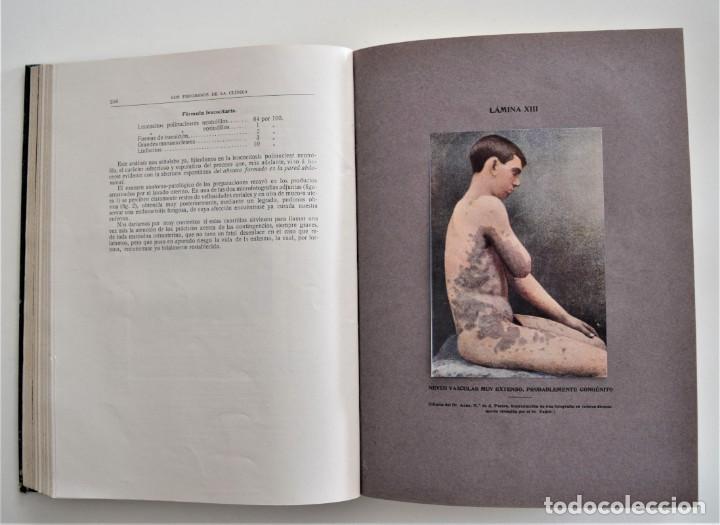 Libros antiguos: LOS PROGRESOS DE LA CLÍNICA DOS TOMOS AÑO COMPLETO DE 1915 - Foto 7 - 202394771