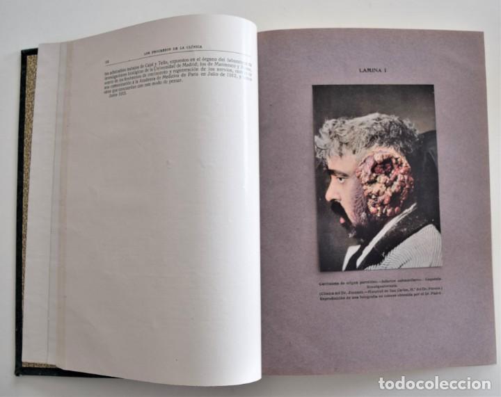 Libros antiguos: LOS PROGRESOS DE LA CLÍNICA DOS TOMOS AÑO COMPLETO DE 1915 - Foto 10 - 202394771