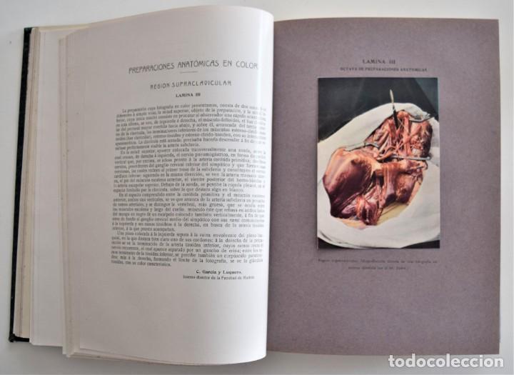 Libros antiguos: LOS PROGRESOS DE LA CLÍNICA DOS TOMOS AÑO COMPLETO DE 1915 - Foto 12 - 202394771