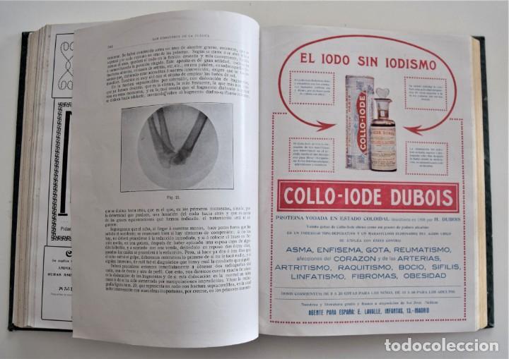 Libros antiguos: LOS PROGRESOS DE LA CLÍNICA DOS TOMOS AÑO COMPLETO DE 1915 - Foto 13 - 202394771