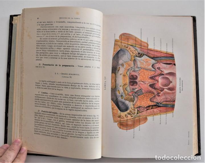 Libros antiguos: ATLAS DE DISECCIÓN POR REGIONES - TESTUT, JACOB Y BILLET - CASA EDITORIAL P. SALVAT 1921 - Foto 6 - 202398743