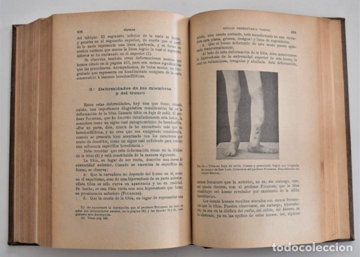 Libros antiguos: TRATADO PRÁCTICO DE LA SÍFILIS Y ENFERMEDADES VENÉREAS TOMO I - POR BERDAL - JOSÉ ESPASA, BARCELONA - Foto 8 - 202400217