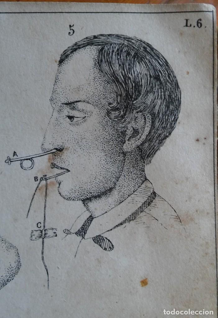INSTRUCCIÓN DEL PRACTICANTE. MADRID, 1863. 9 BONITAS LÁMINAS LITOGRAFIADAS (Libros Antiguos, Raros y Curiosos - Ciencias, Manuales y Oficios - Medicina, Farmacia y Salud)