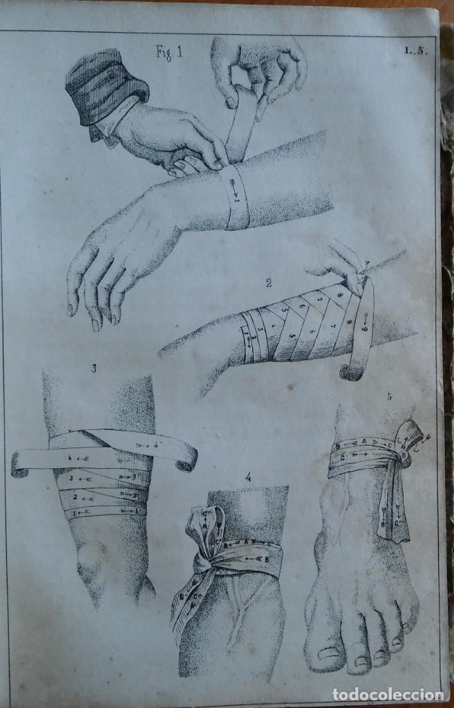 Libros antiguos: Instrucción del practicante. Madrid, 1863. 9 bonitas láminas litografiadas - Foto 7 - 211510994
