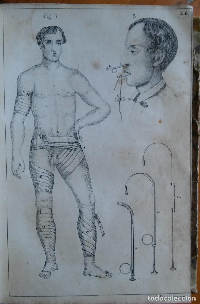 Libros antiguos: Instrucción del practicante. Madrid, 1863. 9 bonitas láminas litografiadas - Foto 8 - 211510994