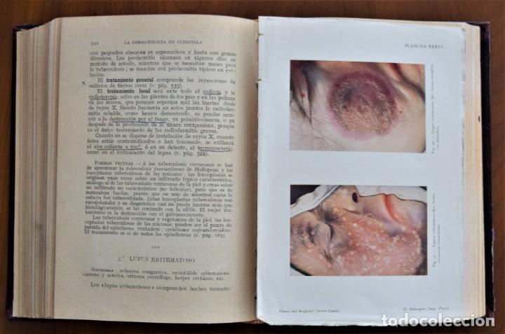 Libros antiguos: DERMATOLOGÍA - H. GOUGEROT - COLECCIÓN CÓMO CURAR - EDITORIAL PUBUL , BARCELONA 1924 - Foto 8 - 214429307