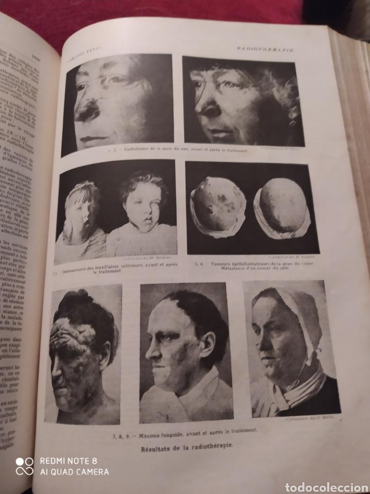 Libros antiguos: LAROUSSE MEDICAL ILLUSTRE. 1924/1925 - Foto 9 - 219864833