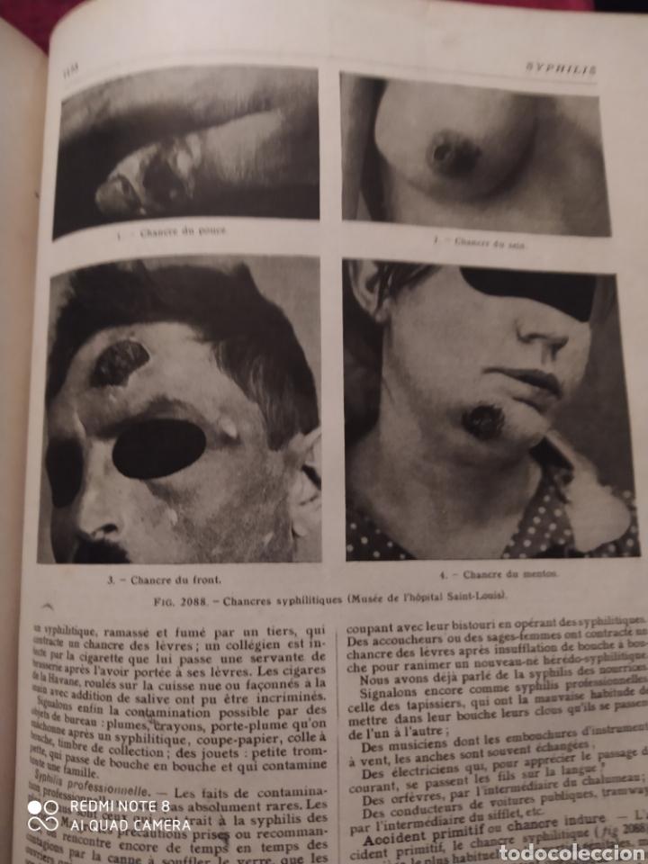 Libros antiguos: LAROUSSE MEDICAL ILLUSTRE. 1924/1925 - Foto 10 - 219864833