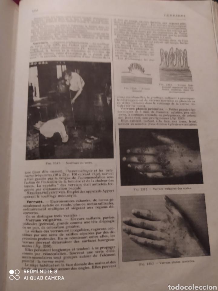 Libros antiguos: LAROUSSE MEDICAL ILLUSTRE. 1924/1925 - Foto 11 - 219864833