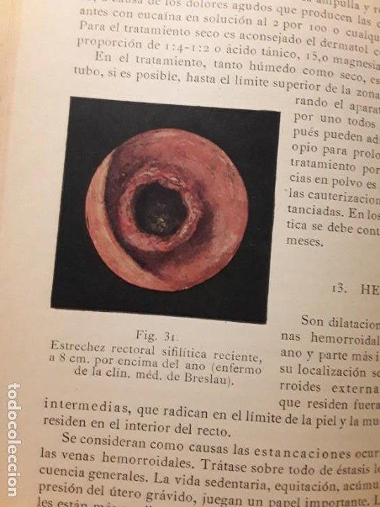 Libros antiguos: Enfermedades del intestino y de la nutrición. Mohr y Staehelin. Calleja, 1922 - Foto 4 - 219764746