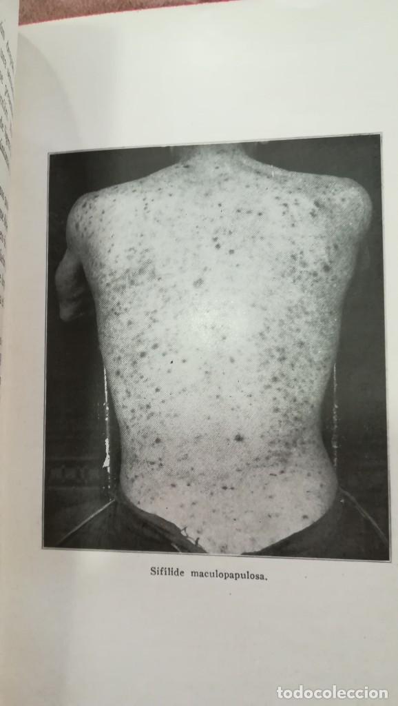 Libros antiguos: Historia de la Sífilis y Tratamiento de las Enfermedades Venéreas 1920 - Foto 5 - 227146725