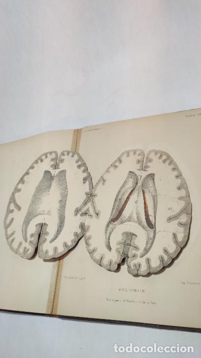 Libros antiguos: El cuerpo humano. estructuras y funciones. Eduardo Cuyer. 2 tomos. Desplegables. Madrid. 1880. - Foto 19 - 236137325