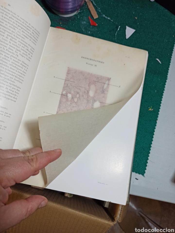 Libros antiguos: Le poumon. Tomo I y II Maurice Letulle. 1924. Con ilustraciones. Ver fotos - Foto 2 - 242071510