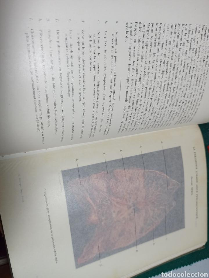 Libros antiguos: Le poumon. Tomo I y II Maurice Letulle. 1924. Con ilustraciones. Ver fotos - Foto 3 - 242071510