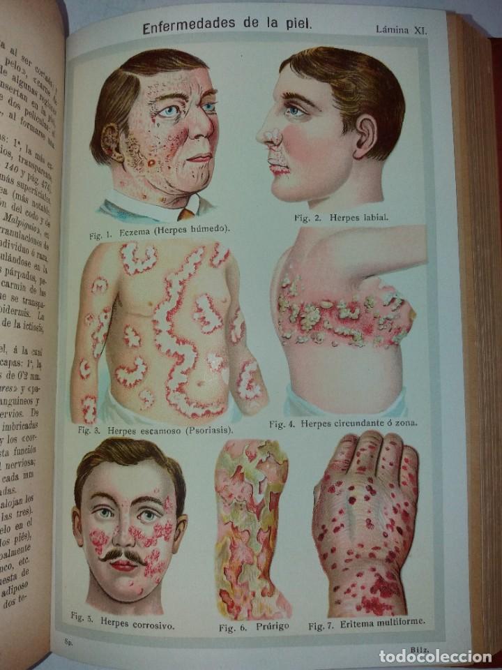 Libros antiguos: ATRACTIVO LIBRO METODO DE MEDICINA NATURAL MÁS DE 120 AÑOS MODERNISTA - Foto 98 - 245311370