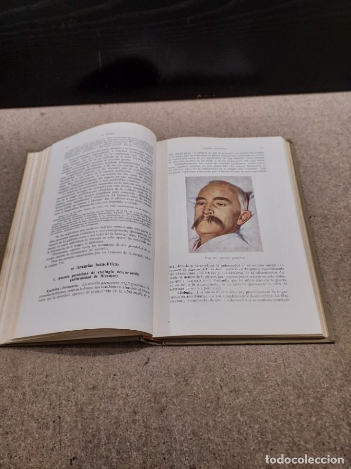 Libros antiguos: MEDICINA....ENFERMEDADES DE LA SANGRE....G.ROSENOW...1927....... - Foto 8 - 245436995