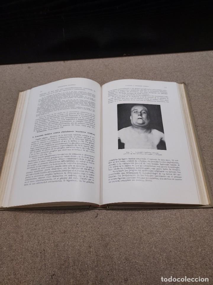 Libros antiguos: MEDICINA....ENFERMEDADES DE LA SANGRE....G.ROSENOW...1927....... - Foto 9 - 245436995