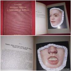 Libros antiguos: AFECCIONES SIFILÍTICAS Y SIFILIFORMES DE LA BOCA DR FERNANDO ZINSSER EDITORIAL LABOR 1926. Lote 246124490