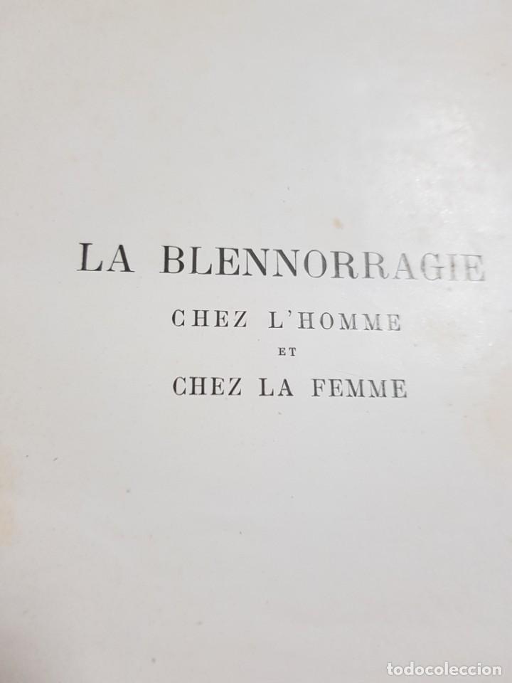 Libros antiguos: LA BLENNORRAGIE. PIERRE BARBELLION. EDITIONS MEDICALES. 1934 - Foto 4 - 246489245