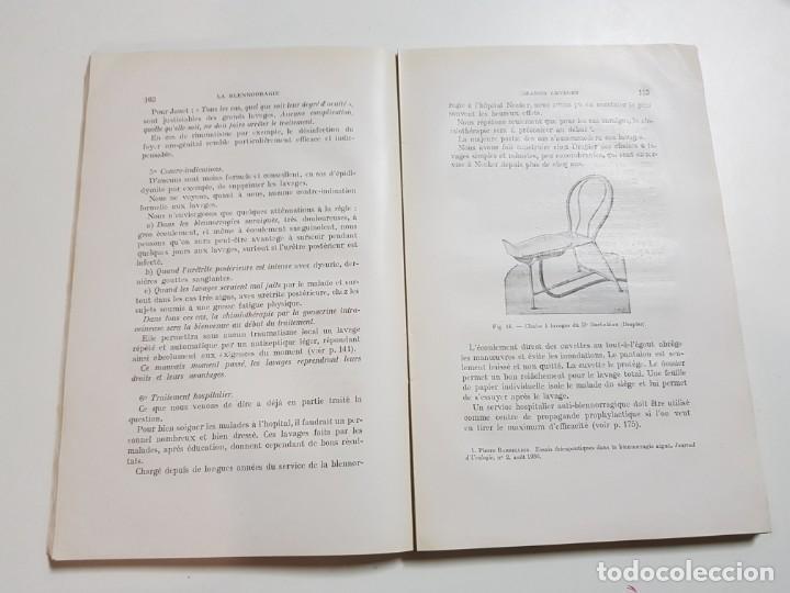 Libros antiguos: LA BLENNORRAGIE. PIERRE BARBELLION. EDITIONS MEDICALES. 1934 - Foto 9 - 246489245