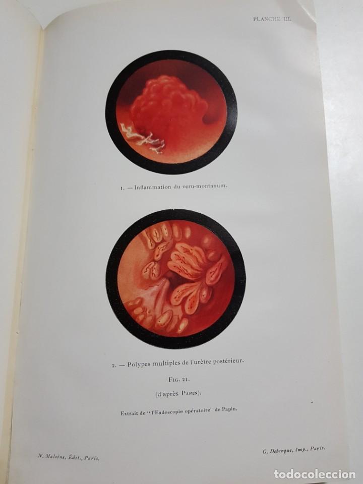 Libros antiguos: LA BLENNORRAGIE. PIERRE BARBELLION. EDITIONS MEDICALES. 1934 - Foto 11 - 246489245