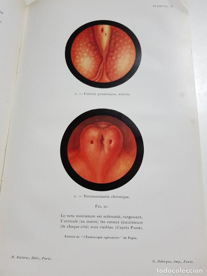 Libros antiguos: LA BLENNORRAGIE. PIERRE BARBELLION. EDITIONS MEDICALES. 1934 - Foto 12 - 246489245