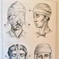Libros antiguos: MEDICINA Y FARMACIA,LIBRO VADE-MECUM DEL PRACTICANTE,TRATADO DE CIRUGIA MENOR,1879,GRABADOS ANATOMIA. Lote 248393835