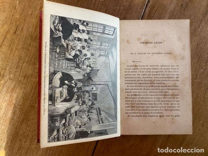 Libros antiguos: Libro Cours Médicine Opératoire - Paris - 1880 - Foto 8 - 259758390