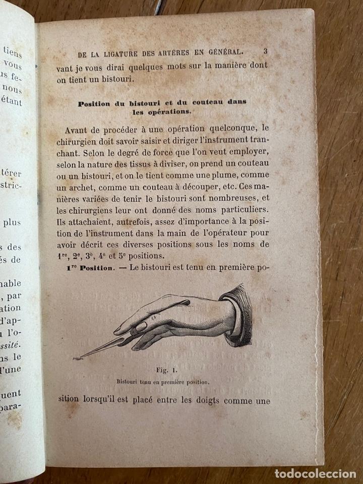 Libros antiguos: Libro Cours Médicine Opératoire - Paris - 1880 - Foto 9 - 259758390