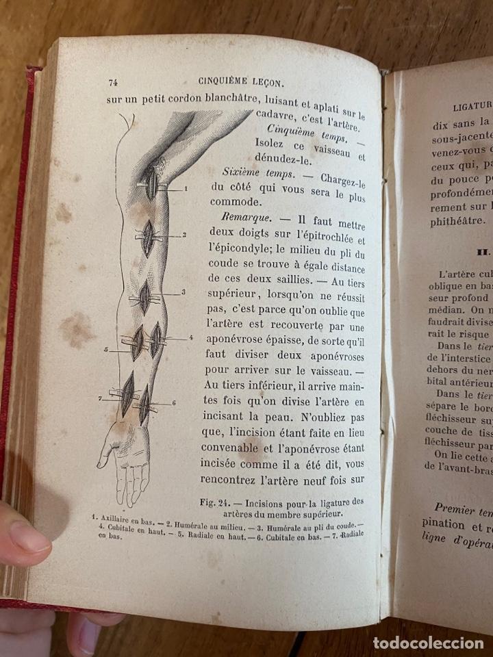Libros antiguos: Libro Cours Médicine Opératoire - Paris - 1880 - Foto 11 - 259758390