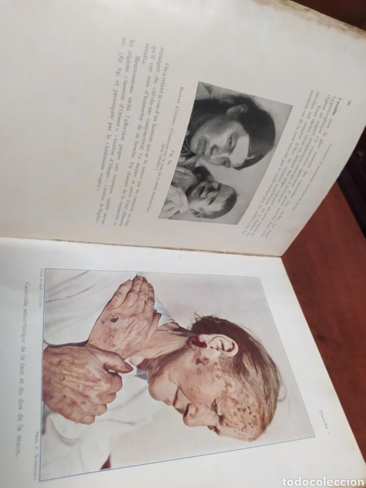Libros antiguos: Tratado de Cirugía , en francés. - Foto 2 - 261161375
