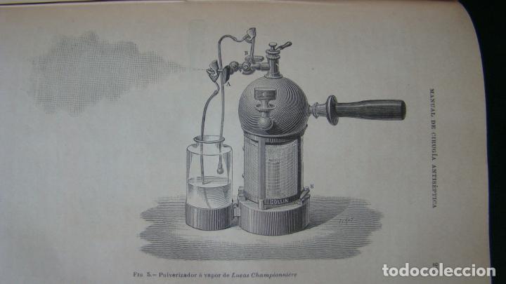 Libros antiguos: MANUAL PRACTICO DE CIRUGIA ANTISÉPTICA . DR. CARDENAL. 1894. OBRA MUY ILUSTRADA. - Foto 4 - 263243200
