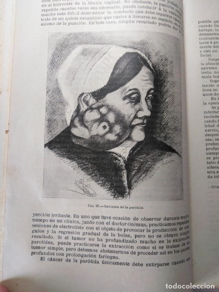 Libros antiguos: Tratado de cirugía clínica. Tillaux. 1895. - Foto 6 - 263252040