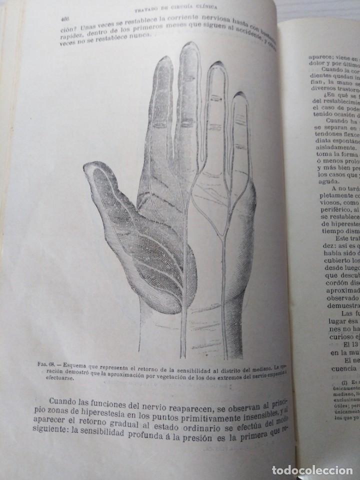 Libros antiguos: Tratado de cirugía clínica. Tillaux. 1895. - Foto 7 - 263252040