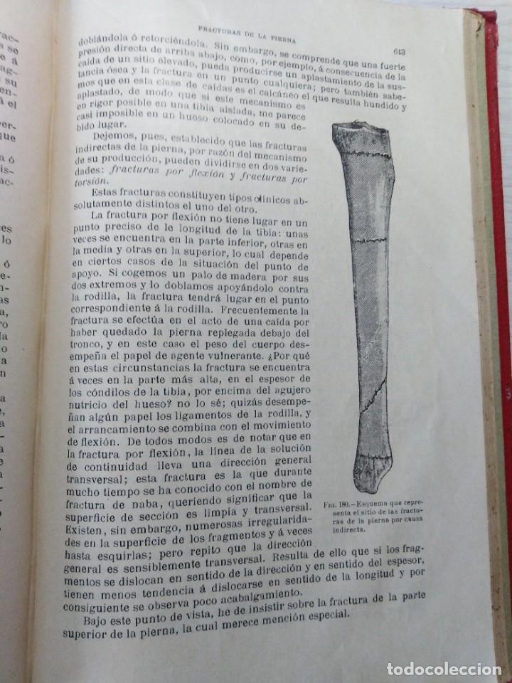 Libros antiguos: Tratado de cirugía clínica. Tillaux. 1895. - Foto 11 - 263252040