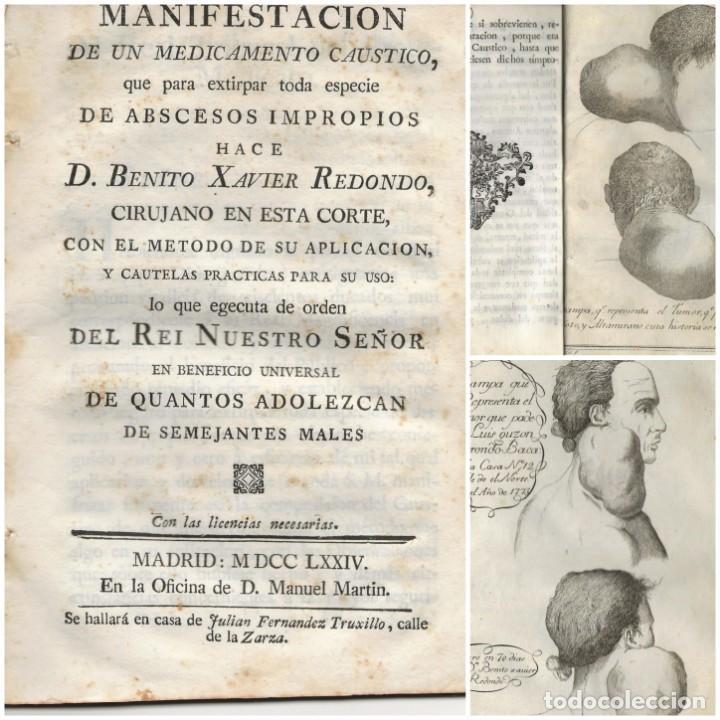(CIRUGÍA) MADRID, 1774. MEDICAMENTO CÁUSTICO PARA EXTIRPAR ABSCESOS...BENITO XAVIER REDONDO. (Libros Antiguos, Raros y Curiosos - Ciencias, Manuales y Oficios - Medicina, Farmacia y Salud)