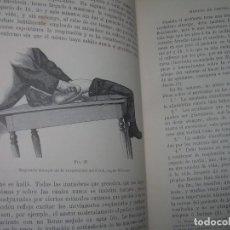 Libros antiguos: CIRUGIA ANTISEPTICA-LIBRO TAPAS DE PIEL-AÑO.1887.-CON GRABADOS...VER FOTOS.. Lote 274338543