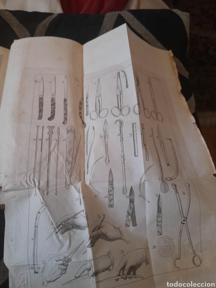 Libros antiguos: Manual de Medicina Operatoria, Tomo II de 1848 ,con 10 láminas desplegables - Foto 3 - 285684658
