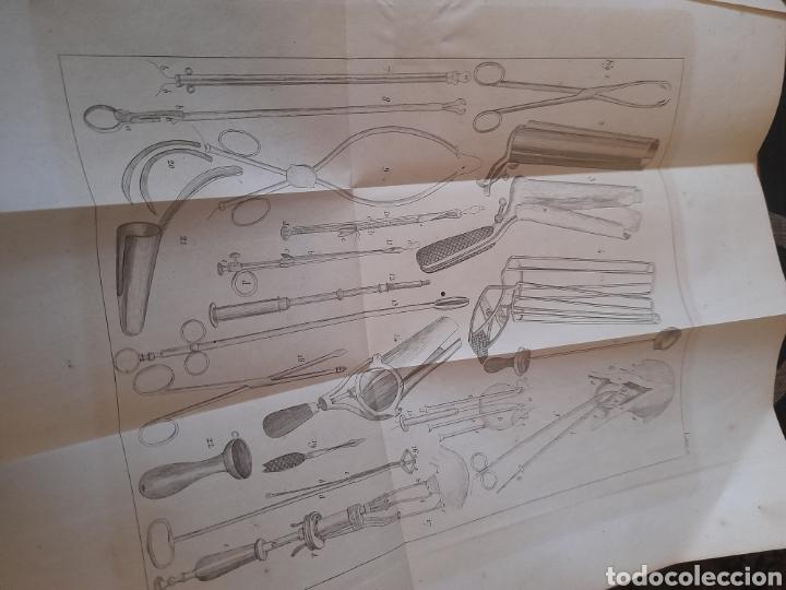 Libros antiguos: Manual de Medicina Operatoria, Tomo II de 1848 ,con 10 láminas desplegables - Foto 4 - 285684658