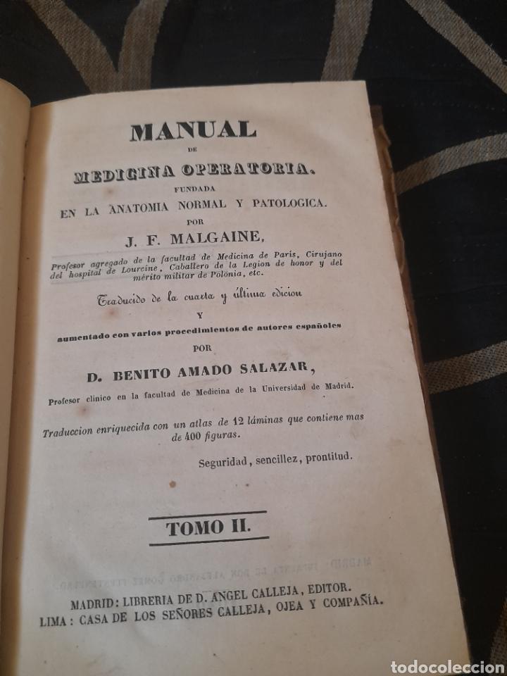 MANUAL DE MEDICINA OPERATORIA, TOMO II DE 1848 ,CON 10 LÁMINAS DESPLEGABLES (Libros Antiguos, Raros y Curiosos - Ciencias, Manuales y Oficios - Medicina, Farmacia y Salud)