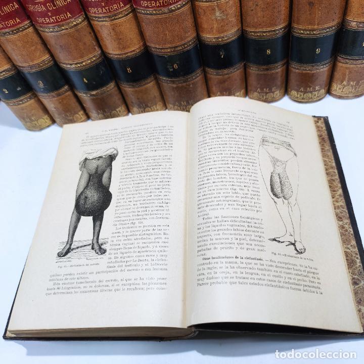Libros antiguos: Tratado de cirugía clínica y operatoria. A. Le Dentu. Pierre Delbet. 11 tomos. Madrid. 1899. - Foto 9 - 290961708