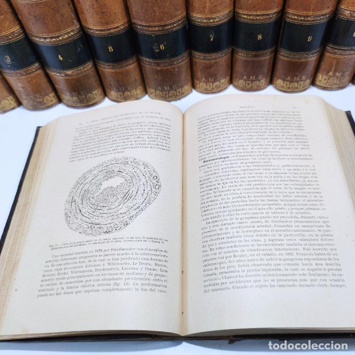 Libros antiguos: Tratado de cirugía clínica y operatoria. A. Le Dentu. Pierre Delbet. 11 tomos. Madrid. 1899. - Foto 10 - 290961708
